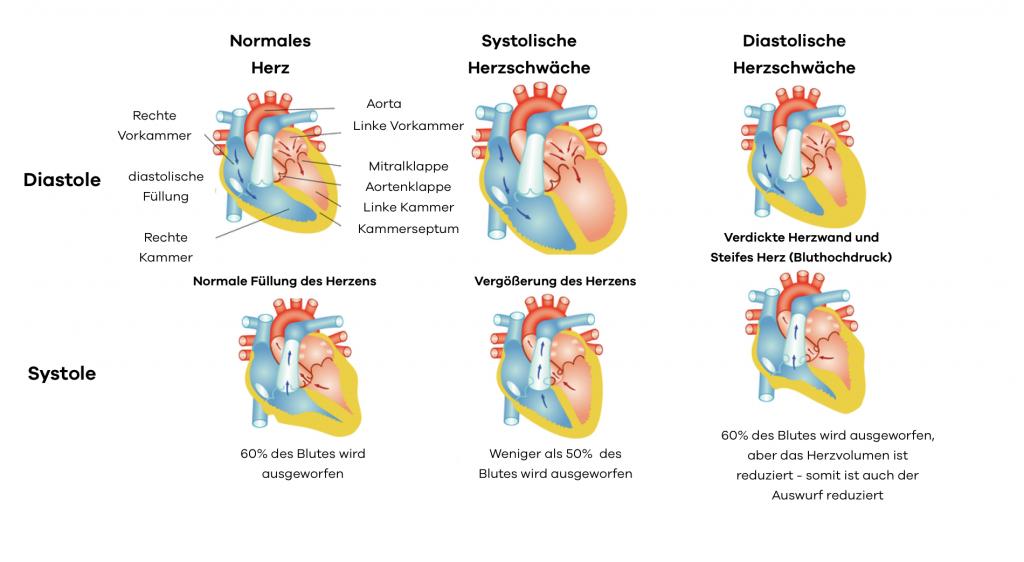 """Eine Herzinsuffizienz und Atemnot kann sowohl im Rahmen eines systolischen als auch eines diastolischen """"Versagens"""" des Herzens auf treten. Bei Bluthochdruck wird das Herz steifer und kleiner. Es Füllt sich mit Weninger Blut. Als Folge kann auch weniger ausgeworfen werden. Bluthochdruck kann aber durch die Schädigung des Herzmuskels auch zu einer systolischen Herzinsuffizienz führen. Bei dieser Form der Herzschwäche ist die Pumpleistung herab gesetzt."""