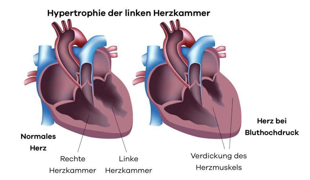 Vergleich eines Gesunden Herzens mit dem Herz eines Hochdruckpatient